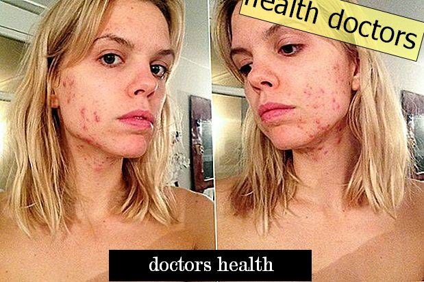 Can you get rid of acne