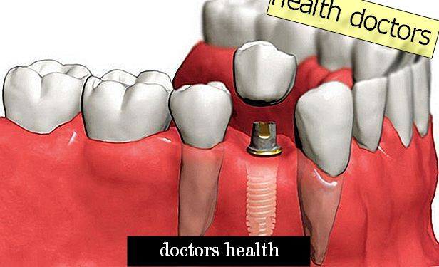 Tooth implantation: historical facts