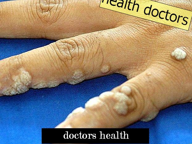 Chemical burning skin: causes and implications (Doctor`s Ask