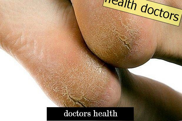 Warts on the hands